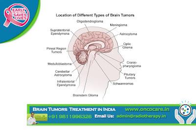 Best Brain Tumors Treatment in India