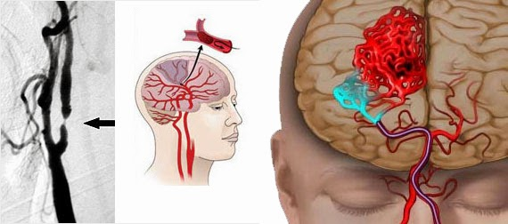 Acute Subdural Hematoma Treatment in Chennai