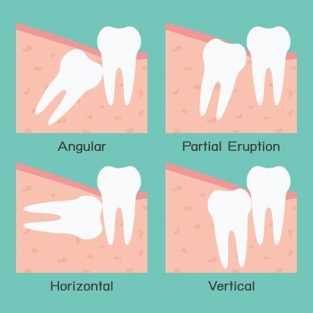 bedah gigi bongsu