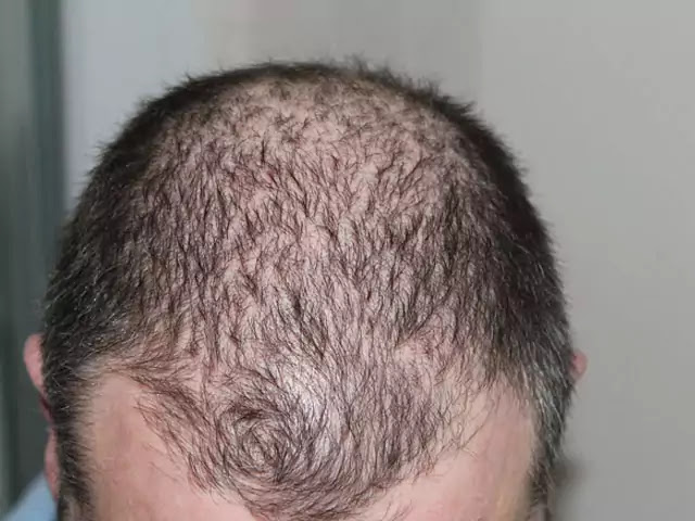 FUE Hair Transplant Surgery in India