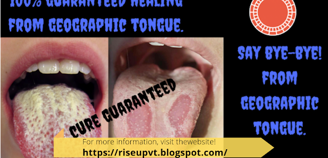 BURNING TONGUE TREATMENT |GEOGRAPHIC TONGUE CURE | WHITE PATCHES ON TONGUE |BURNING MOUTH| FISSURED TONGUE|