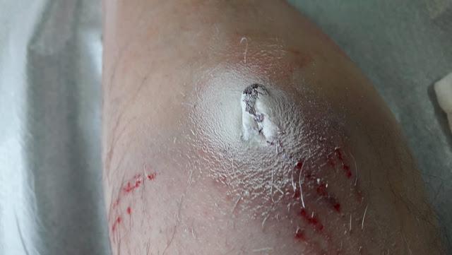 Πρέβεζα: Στο νοσοκομείο δικυκλιστής από επίθεση σκύλου - Εικόνες