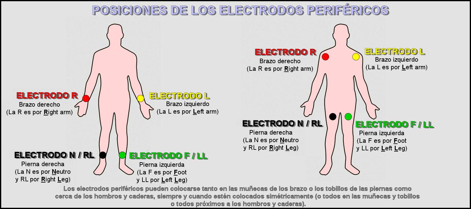 Colocación De Electrodos Ecg