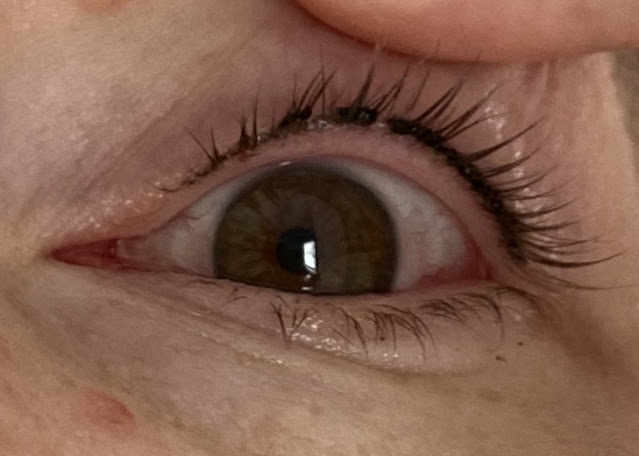 close up of an eye showing where the scabs from permanent eyeliner are coming off in places