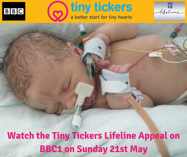 Have you ever heard of Tiny Tickers? | Babies with Heart Conditions