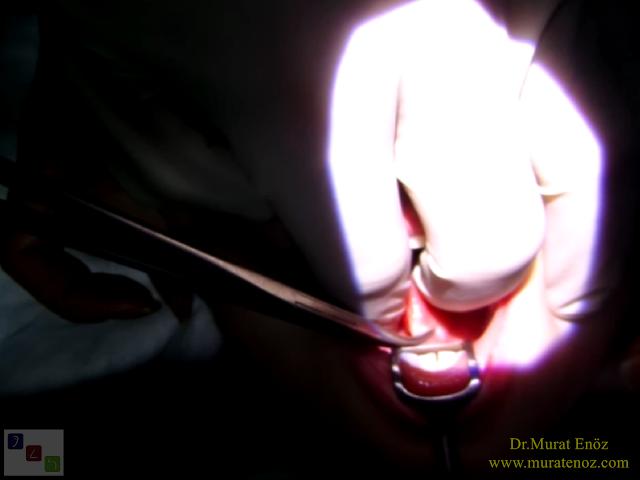 Dil bağı çıkarılması - Lingual frenektomi - Dil bağı tedavisi - Dil altı bağı kesilmesi - Dil bağı ameliyatı - Dil bağı operasyonu - Lingual frenectomy - Dil altı bağı tedavisi - Dil bağı çıkarılması işlemi fiyatı - Dil bağı çıkarılması işlemi nasıl yapılır? - Dil bağı çıkarılması (lingual frenektomi) nedir? - Kansız dil bağı ameliyatı – Thermal welding ile dil bağı ameliyatı -  Tongue tie release surgery with thermal welding device - Lingual frenectomy operation with thermal welding device - Bloodless and knifeless tongue tie release surgery - Bloodless lingual frenectomy with with thermal welding – Tongue tie treatment in İstanbul, Turkey