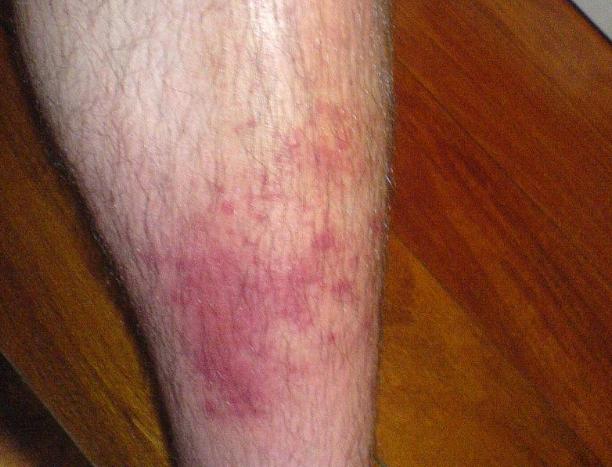 Ulcer Buruli