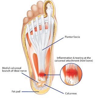 cross section view of plantar-fascia ligament