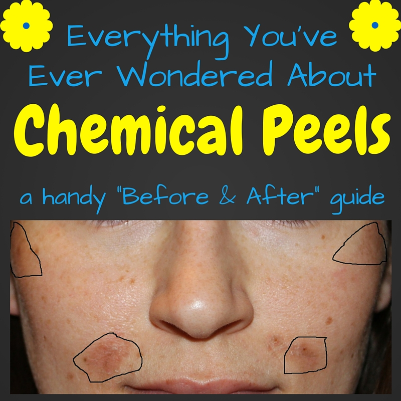A bloggers before after guide to chemical peels solutioingenieria Gallery