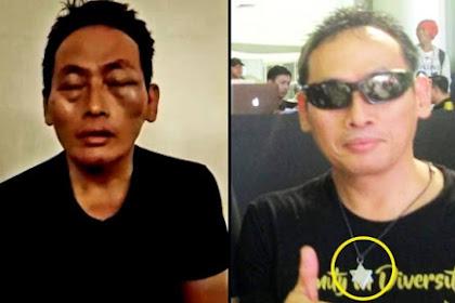 Pengurus Masjid: Kami Menyelamatkan Ninoy Karundeng, Tapi Kok Beritanya Malah Diculik Dan Dipukuli