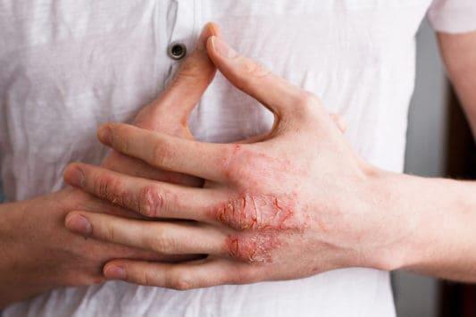 Préparer une crème naturelle pour éliminer les symptômes de l'eczéma