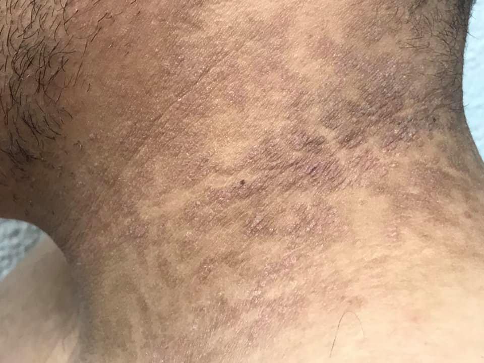 tratamiento de papilomatosis reticulada y confluente