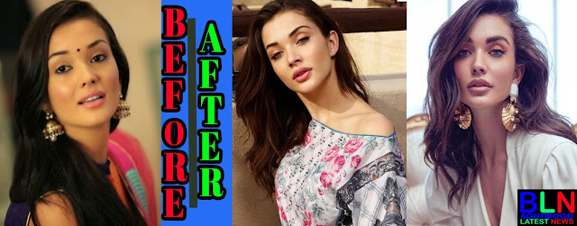 AMY JACKSON Bollywood Actresses Before and After Plastic Surgery