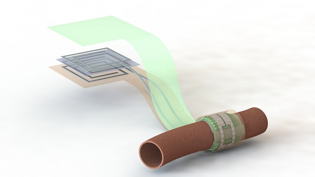 A Biodegradable Blood Flow Sensor that Self-Resorbs