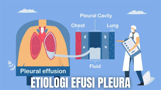 """Etiologi Efusi Pleura Pada Manusia Menurut (Davey, 2002) etiologi dari efusi pleura adalah :  Efusi pleura transudat Gagal jantung Sindroma nifrotik Hipoalbuminemia Sirosis hepatis  Efusi pleura eksudat Pneumonia bakterialis Karsinoma Infark paru Pleuritis    Etiologi secara umum Efusi Pleura menurut (Mansjoer, 2001) adalah sebagai berikut :  Neoplasma seperti bronkogenik dan metastatik Kardiovaskuler seperti CHF, embolus pulmonas, dan perikarditis Penyakit pada abdomen seperti pankreatitis, asites, abses, sindroma meigs Infeksi yang disebabkan oleh bakteri, virus, jamur, mikrobakterial dan parasit Trauma Lain-lain seperti SLE, rheumatoid arthritis, sindroma nefrotik atau anemia    Nah itu dia bahasan dari Etiologi efusi pleura pada manusia, melalui bahasan di atas bisa diketahui mengenai Etiologi efusi pleura pada manusia. Mungkin hanya itu yang bisa disampaikan di dalam artikel ini, mohon maaf bila terjadi kesalahan di dalam penulisan, dan terimakasih telah membaca artikel ini.""""God Bless and Protect Us"""""""