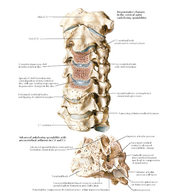 Degenerative Changes in Cervical Vertebrae Anatomy  Spinous process, Groove for spinal nerve on transverse process, Uncovertebral joint fused owing to extensive spondylophyte formation and ossification, Potential for compression of vertebral artery within transverse foramen, Vertebral body, Advanced ankylosing spondylitis with uncovertebral arthrosis in C4 and C5 C3 vertebral body (sectioned in coronal plane) C4, Degenerative changes in the cervical spine, Atlas (C1) (ankylosing spondylitis), Axis (C2), Complete transverse cleft in intervertebral disc, Uncovertebral joint with cleft formation C5, Inferior articular process with facet, Markedly narrowed intervertebral foramen may lead to compression of spinal nerve, Facet joint ossified owing to advanced, Advanced spondylophyte (osteophyte) osteoarthritic change formation on uncinate processes, Superior articular process, Spread of cleft formation into central portion of intervertebral disc with age, leading to progressive degenerative changes in the disc, Deformed vertebral bodies and lipping of vertebral margins, C7 vertebra, Spondylophytes (osteophytes) on uncinate processes Narrowing of intervertebral foramen