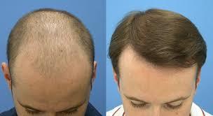 saç ekimi öncesi ve sonrası foto 6