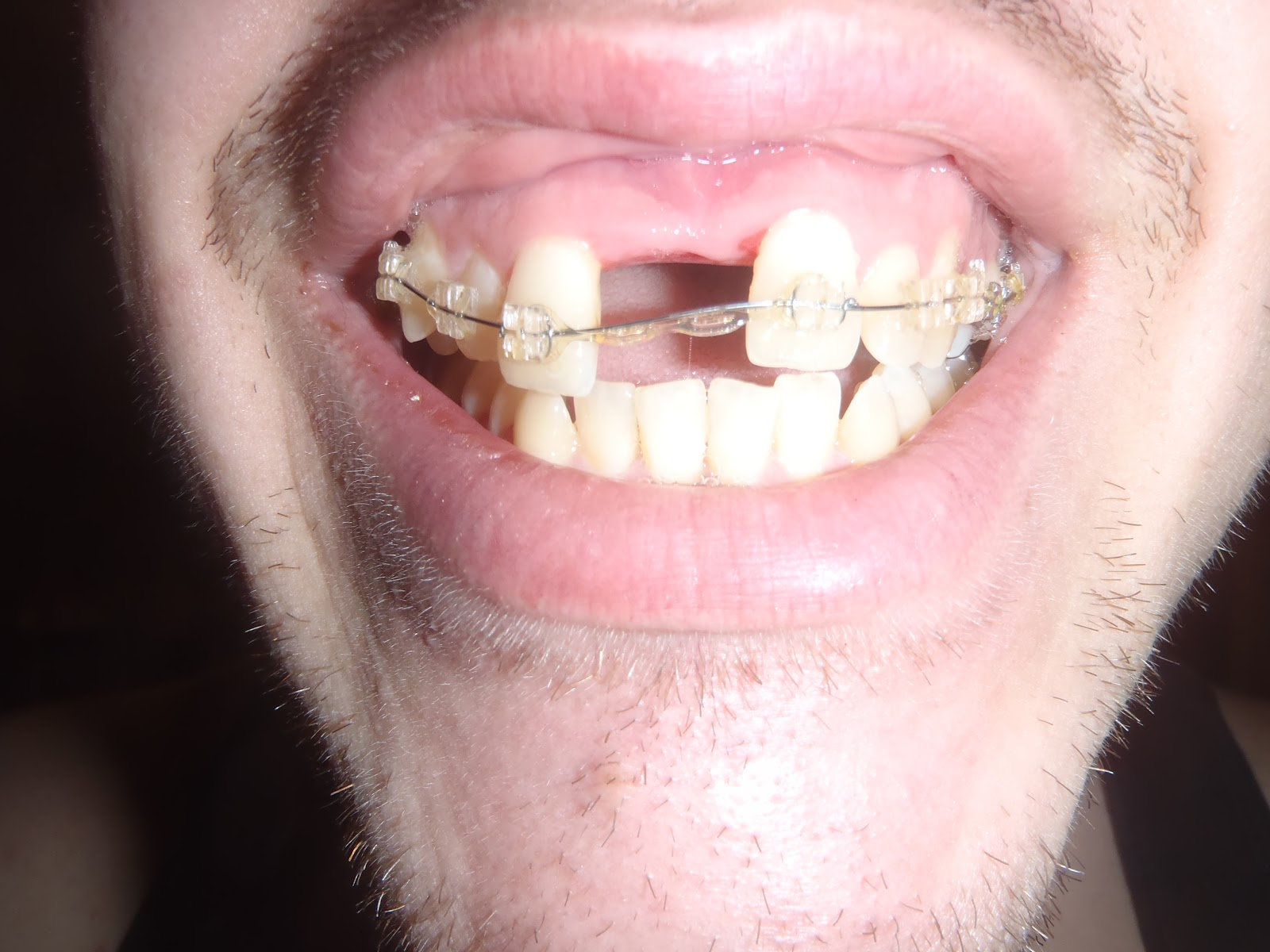 My SARPE Story: Stalemate: Braces vs The Expander!
