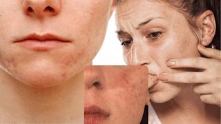 Arrêtez l'acné maintenant