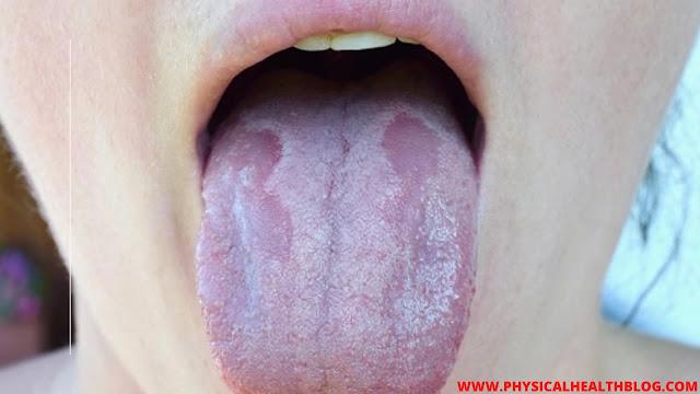 symptoms of oral thrush