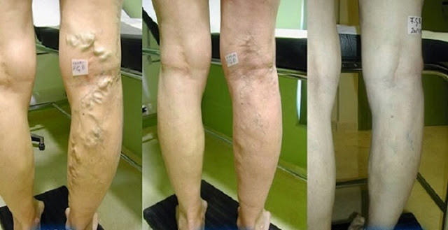 Heal Your Varicose Veins With A Mix Of Aloe Vera, Carrot And Apple Cider Vinegar