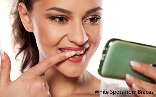 Why White Spots on Teeth from Braces And What Cause on Your Teeth