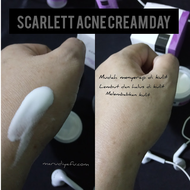 Scarlett Acne Cream