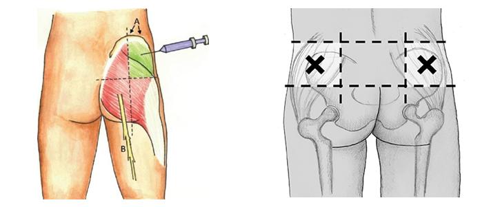 Поставяне на мускулна инжекция