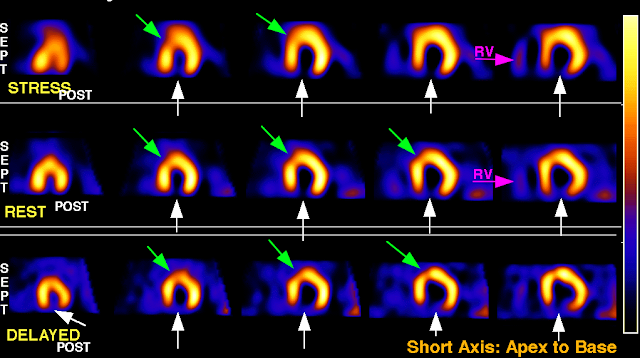 SPECT myocardial perfusion