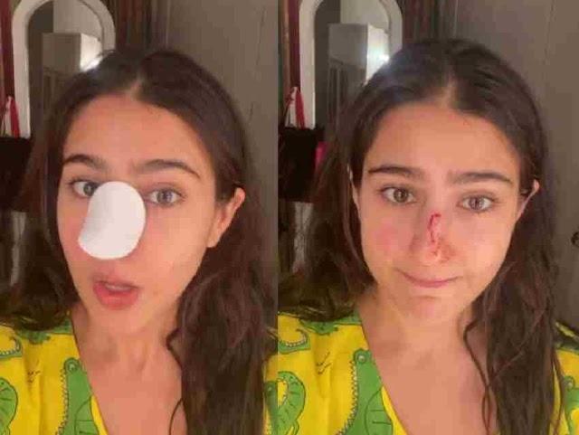 Sara Ali Khan की कटी नाक, वीडियो शेयर कर पापा सैफ एवं मां अमृता को कहा सॉरी...