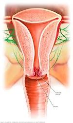 Rahim ağzı kanseri belirtileri ve tedavi yöntemleri