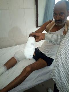 तेज रफ्तार अनियन्त्रित ट्रक ने मोटरसाइकिल सवार को मारी टक्कर  गम्भीर रूप से घायल सवार , निजी अस्पताल में भर्ती