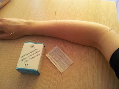 EFT Chinese medicine, EFT accupressure