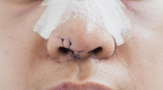 القيروان: طرح زوجته أرضا و عضّها بوحشية من أنفها ليحيلها إلى المستشفى ....