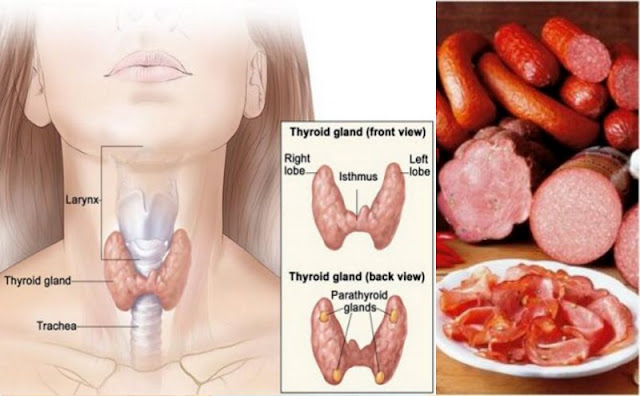 worst foods you can eat for the thyroid
