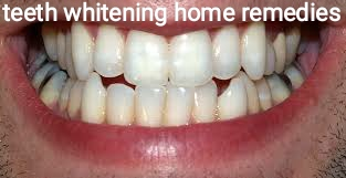 https://www.ayurvedaupachar.in/2019/11/teeth-whitening-home-remedies-in-hindi-.html