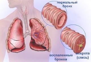Бронхит, обструктивный бронхит - как вылечить хронический бронхит