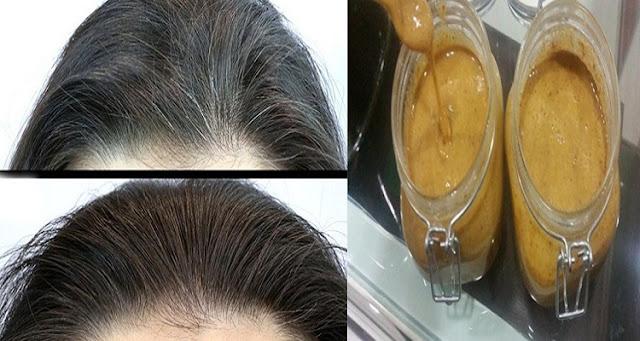 طبيب أمريكي مشهور يقدم وصفة طبيعية للقضاء على الشعر الأبيض فى فترة قصيرة