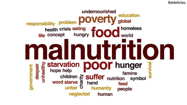 Malnutrition (A Global Stigma)