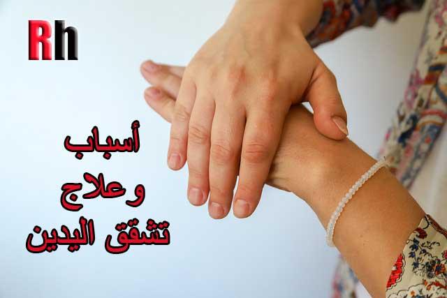 أسباب وعلاج تشقق اليدين