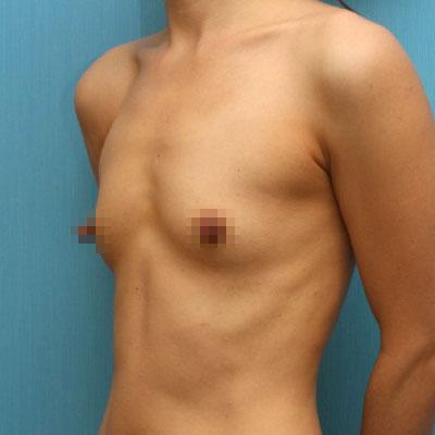 짱이뻐! - Good Decision After Considering Breast Surgery For 10 Years
