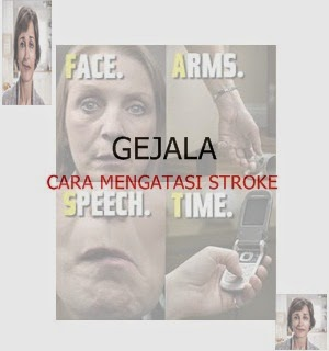 Gejala dan Cara Mengatasi Stroke