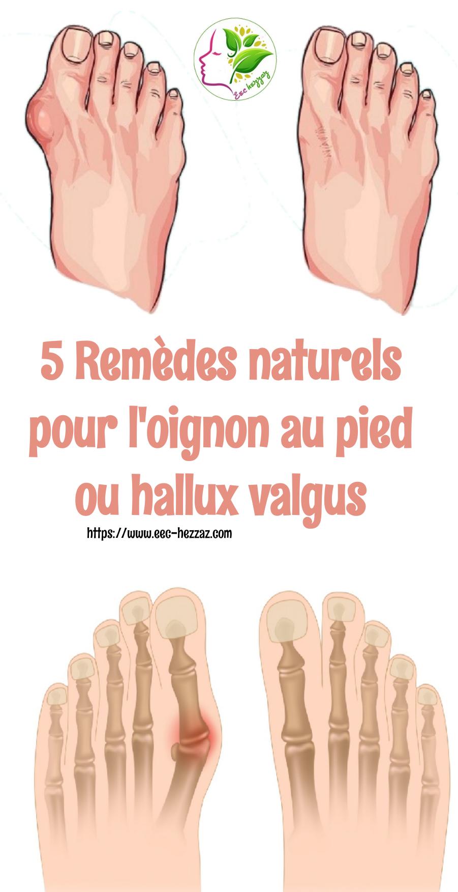 5 Remèdes naturels pour l'oignon au pied ou hallux valgus5 Remèdes naturels pour l'oignon au pied ou hallux valgus