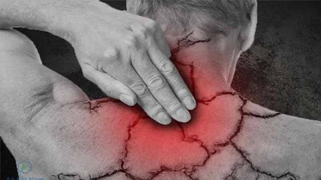 Lưu thông máu giảm dẫn đến tình trạng đau mỏi vai gáy