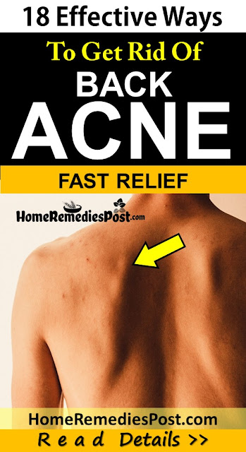 Clear acne overnight fast, How To Get Rid Of Back Acne, Get Rid Of Back Acne Fast, Home Remedies For Back Acne, back Acne Treatment, How To Cure Back Acne, Back Acne Home Remedies, How To Cure Back Acne Fast, Back Acne Remedies, How To Treat Back Acne Fast