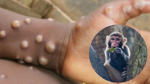 Virus Baru Asal China! Dokter Hewan Meninggal setelah Terinfeksi Virus Monyet