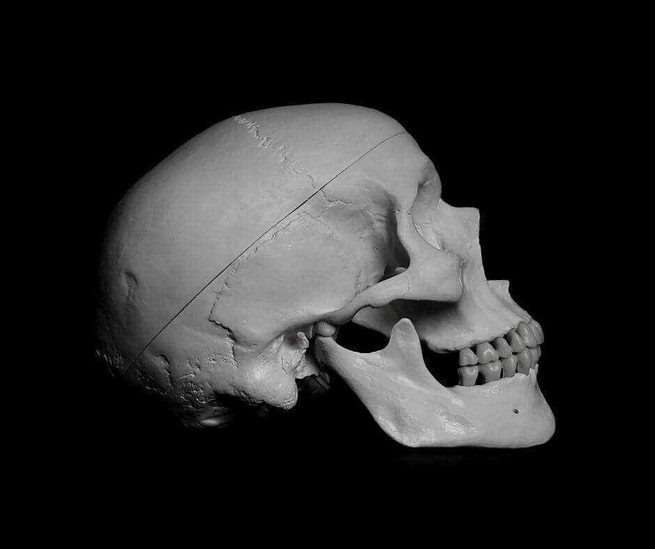 thames-torso-murders-skull