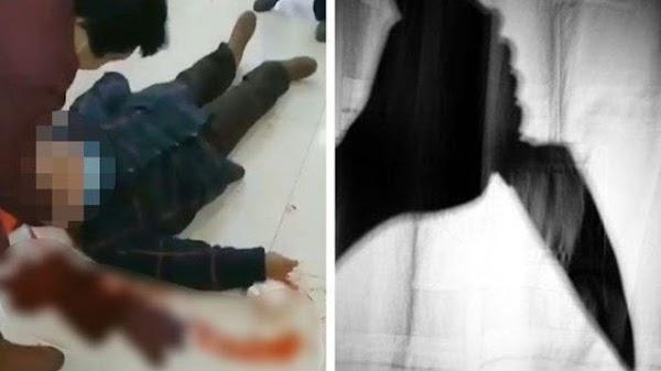 Brutal, Rebutan Cairan Pencegah Virus Corona Berujung Tawuran, Nenek & Bocah Ditusuk Hingga Terkapar
