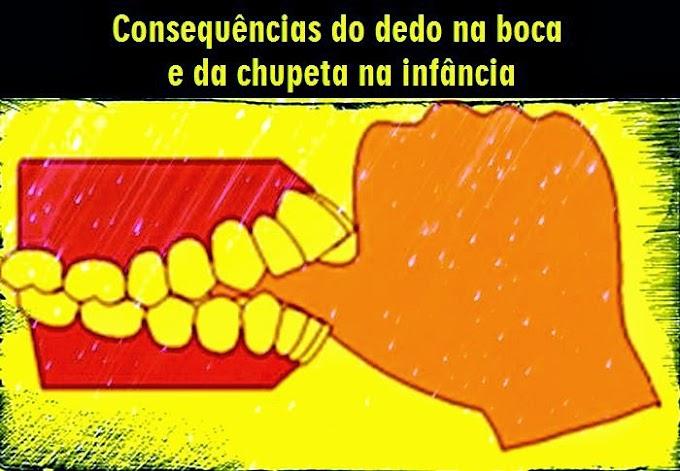 MORDIDA ABERTA: Consequências do dedo na boca e da chupeta na infância