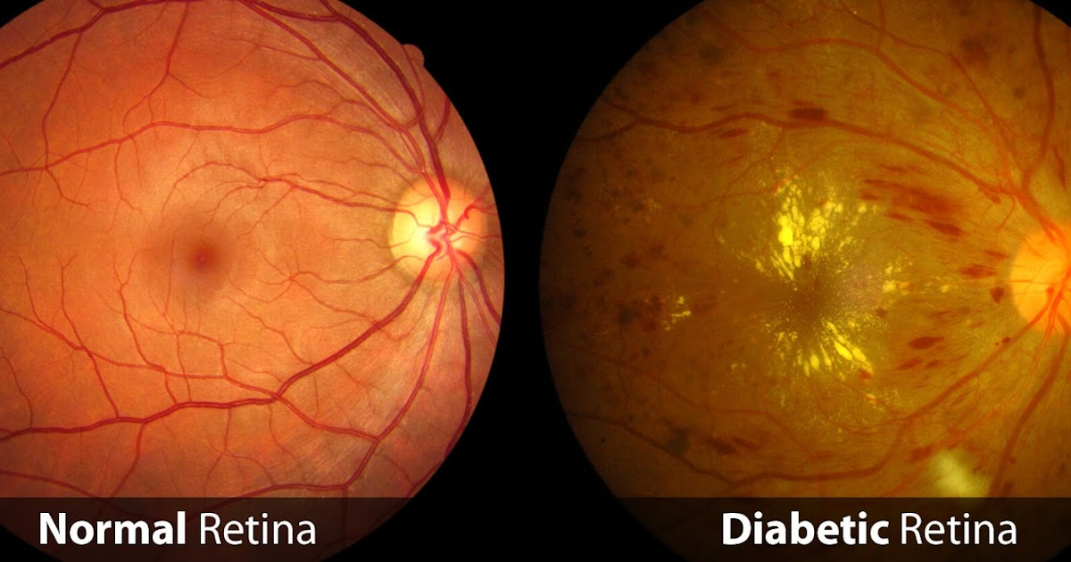 Diabetic Retinopathy Treatment Market Business Opportunities, Sales Revenue, Statistics and Analysis of COVID-19   2027